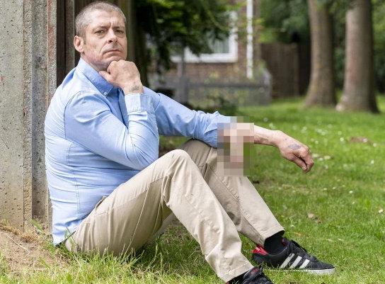别的简报|英国男子在胳膊上接种阴茎